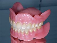 Какие «за и против» зубных протезов?