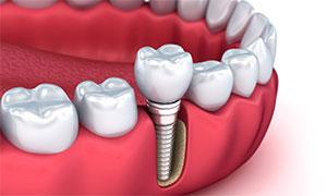 Имплантация зубов в Гатчина