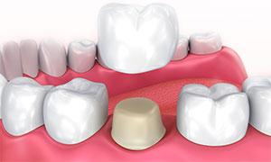 Протезирование зубов в Гатчина