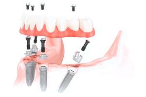 имплантация и протезирование все на четырех