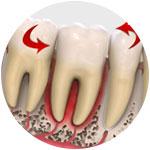 Подвижность зуба при пародонтите