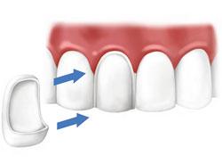 Эстетическое восстановление зубов винирами